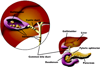 Gallstones gallbladder disease professionally easily explained the ccuart Images